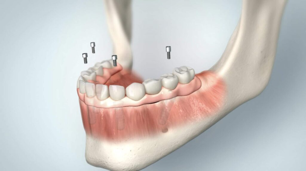 Versorgung der Implantate mit festsitzendem Zahnersatz